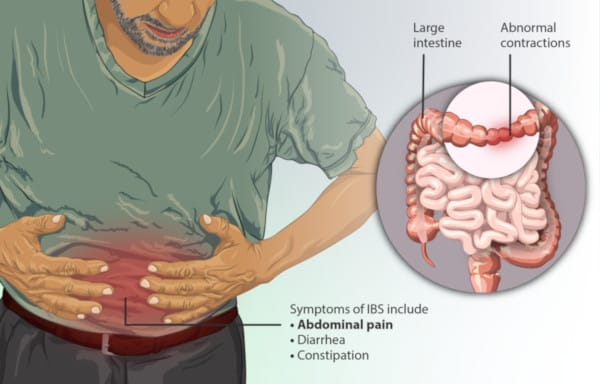 Depiction of a person suffering from Irritable Bowel Syndrome (IBS)